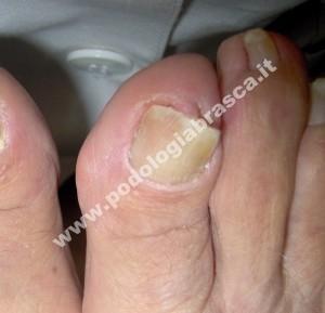 Stessa unghia al termine della terapia con ortonissia Grepmayer