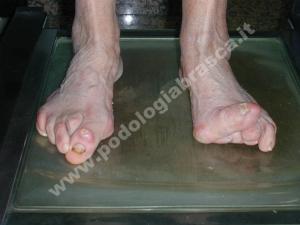 Piede reumatico con onicodistrofia (=alterazione delle unghie)