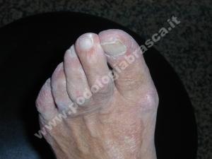 Piede artrosico