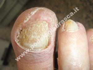 Onicomicosi dopo rimozione del materiale infetto